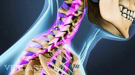 Neck Strains and Sprains Video
