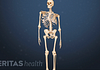 Animated still of an adolescent skeleton with scoliosis