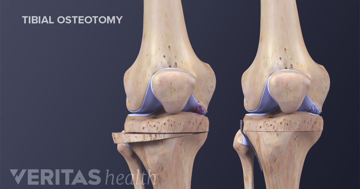 Knee Osteotomy Recovery | Arthritis-Health