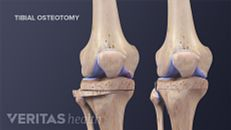 Knee Osteotomy Recovery