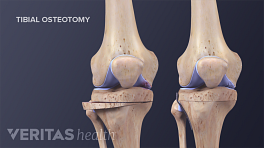 Medical illustration showing parts of the bone that are removed during a tibial osteotomy.