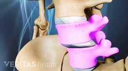 Spondylolisthesis Surgery