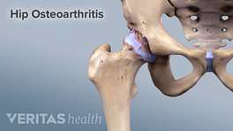 Medical illustration of osteoarthritis in the hip joint