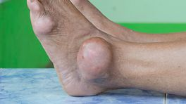 An swollen ankle caused by gout