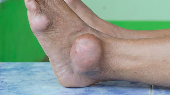 A swollen ankle as a result of gout.