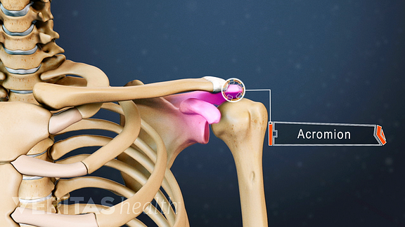 Medical illustration showing the highest point of the shoulder blade, also called the acromion