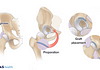 Medical illustration of the hip labrum reconstruction process: diagnosis, graft preparation, and graft placement.