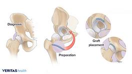 Hip labrum reconstruction process: diagnosis, graft preparation, and graft placement.