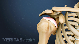 Anterior view of the shoulder joint with pain in the socket.