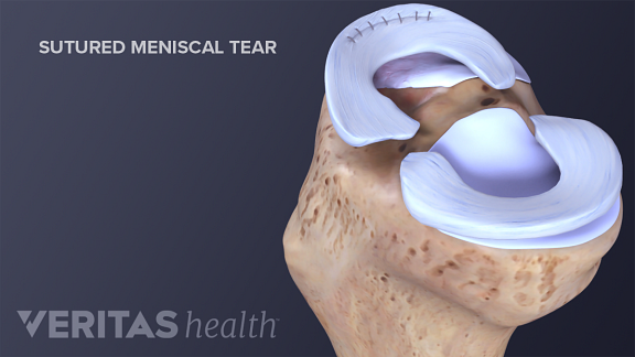 Illustration of a sutured meniscal tear