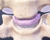 cervical disc between two vertebrae
