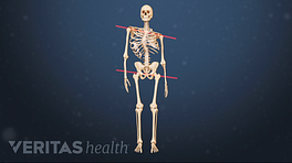 Medical illustration showing the impact of scoliosis on posture