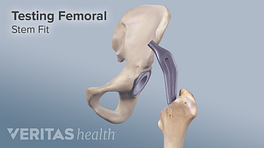 Medical illustration of a hip implant