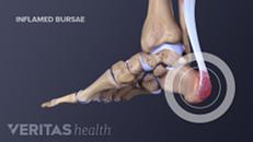 Heel (Retrocalcaneal) Bursitis Treatment