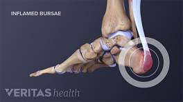 Medical illustration showing an inflammed bursae in the heel of the foot
