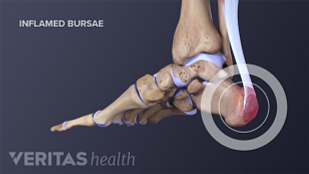 Retrocalcaneal and retroachilles bursitis are common types of bursitis that can cause pain at the back of the foot