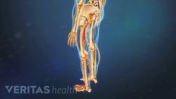 Figuring Out Sciatica Treatments