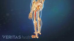 搞清楚治疗坐骨神经痛金博宝如何