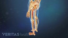 Profile, posterior view of lower body with pain going down left leg.