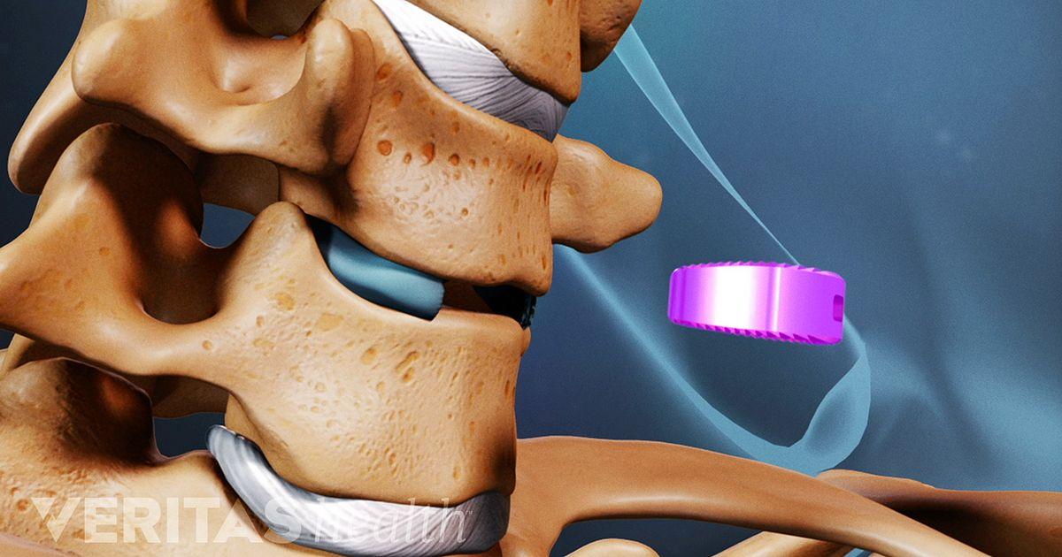Anterior Cervical Decompression and Spine Fusion Procedure