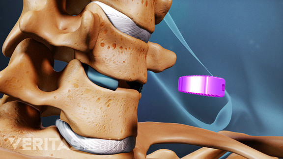 Medical illustration showing a disc being replaced between two vertebrae with an artificial disc