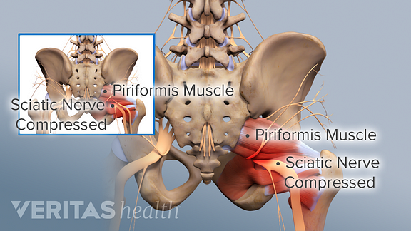 Illustration of piriformis muscle causing sciatic nerve compression