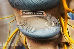 discogenic low back pain pdf