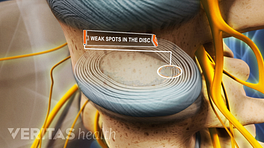 Weak spots in the disc of the lumbar spine.