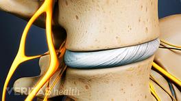 Focused on the disc between two lumbar vertebrae.