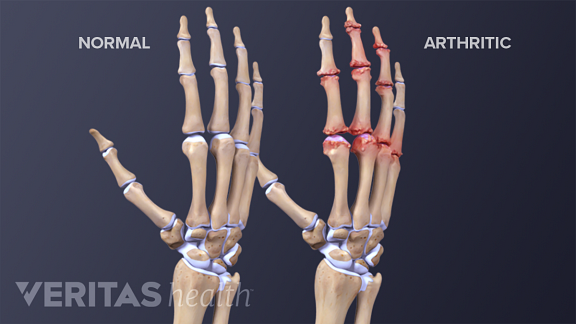 Medical illustration comparing anatomy of hand with arthritis and without