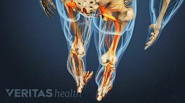 Isthmic Spondylolisthesis causing pain in the legs.