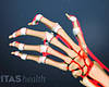 Dorsal view of the hand showing rheumatoid arthritis in the joints.