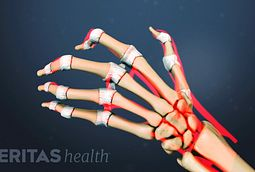 Rheumatoid Arthritis Medication