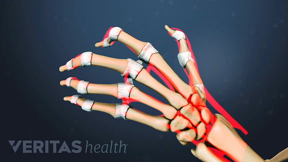 Illustration of how rheumatoid arthritis affects the bones of the hand in stage 4