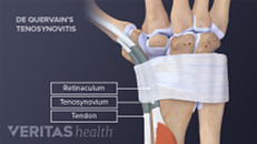 Symptoms and Risk Factors for De Quervain's Tenosynovitis