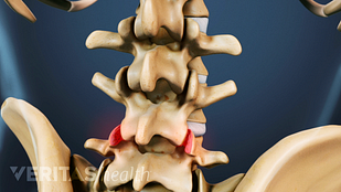 posterior view of the spine with facet joints highlighted
