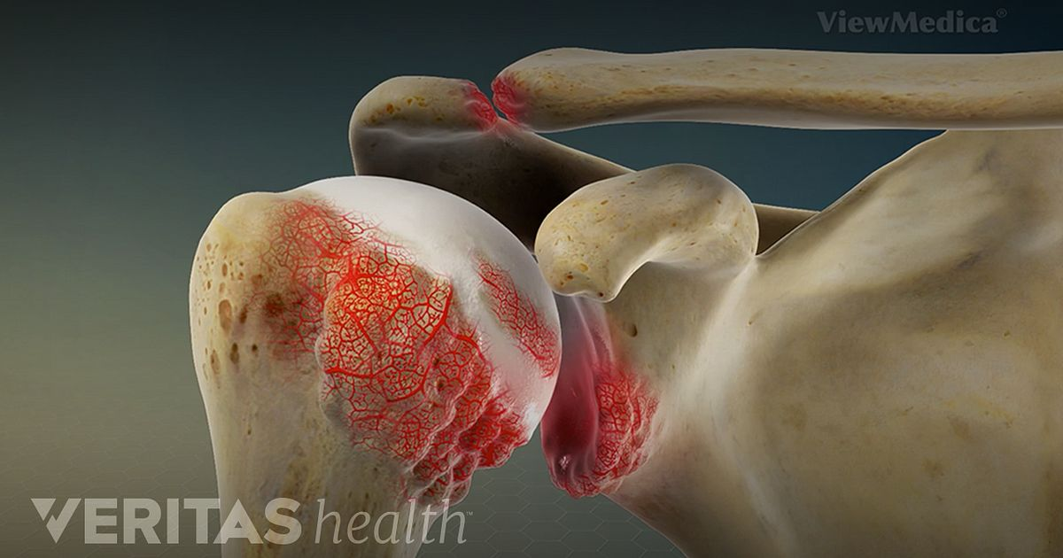 Shoulder Rheumatoid Arthritis Video