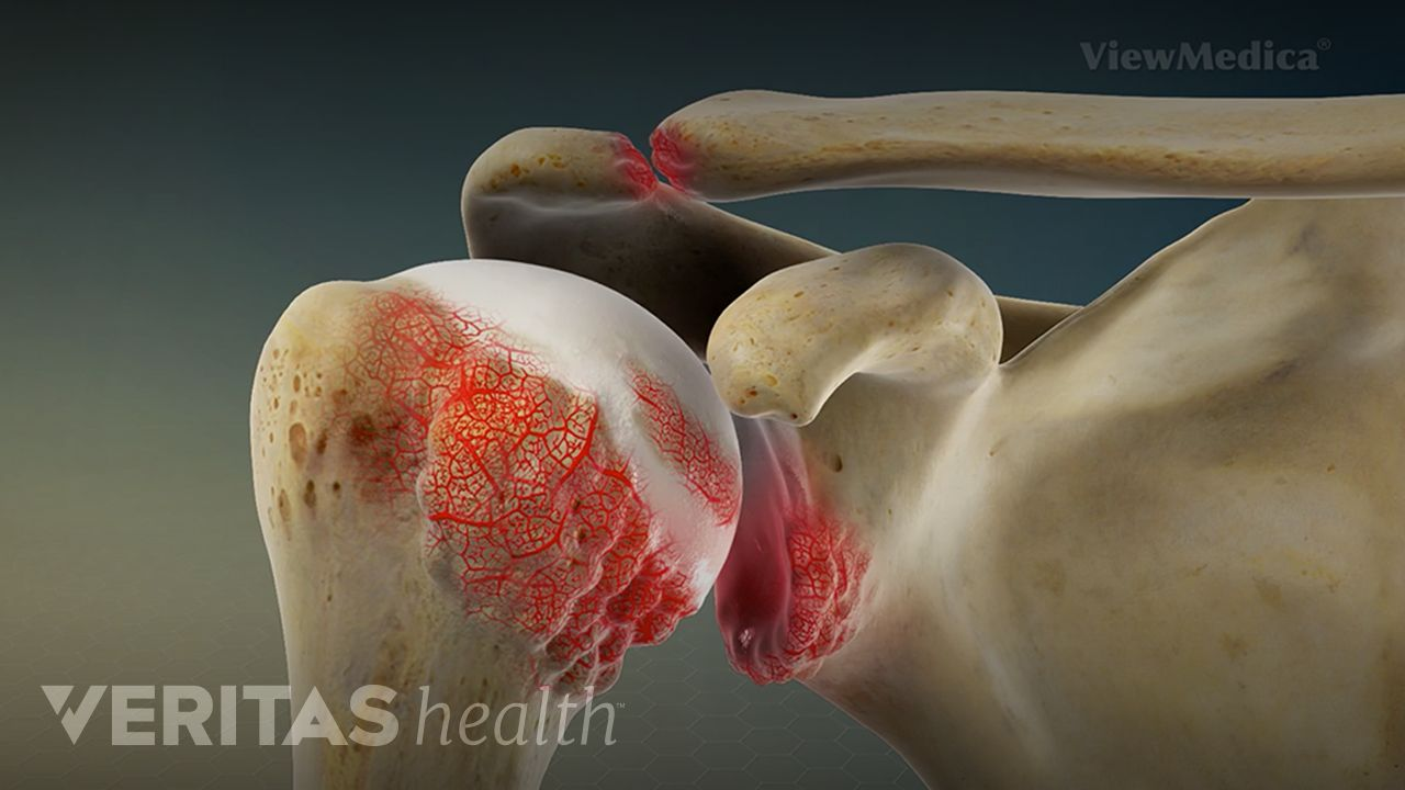 Shoulder Rheumatoid Arthritis Video | Arthritis-Health