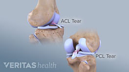 Two views of the knee showing the ACL and PCL tears