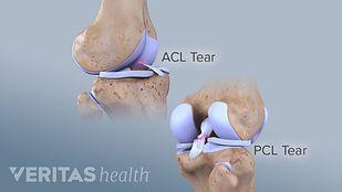 PCL Tear Symptom