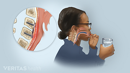 Profile view of a woman swallowing a pill with an inset of the esophagus highlighted and enlarged showing the causes of dysphagia