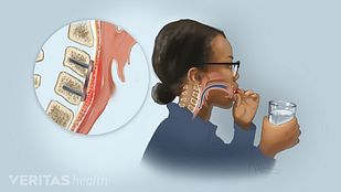 Profile view of a woman swallowing a pill with her esophagus highlighted and enlarged showing the causes of dysphagia