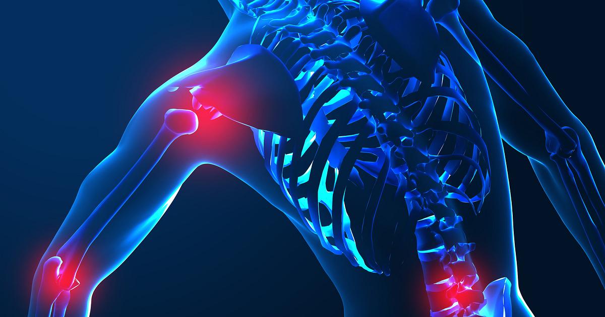 Conditions Related to Inflammatory Arthritis   Arthritis-Health