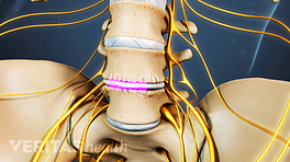 Anterior view of lumbar spine showing healing over artificial disc.