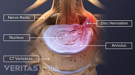 Illustration of C6-C7 herniation and nerve impingement. Nerve roots, nucleus, annulus, material impinges onthe nerve and the 7th cervical vertebra are labeled.