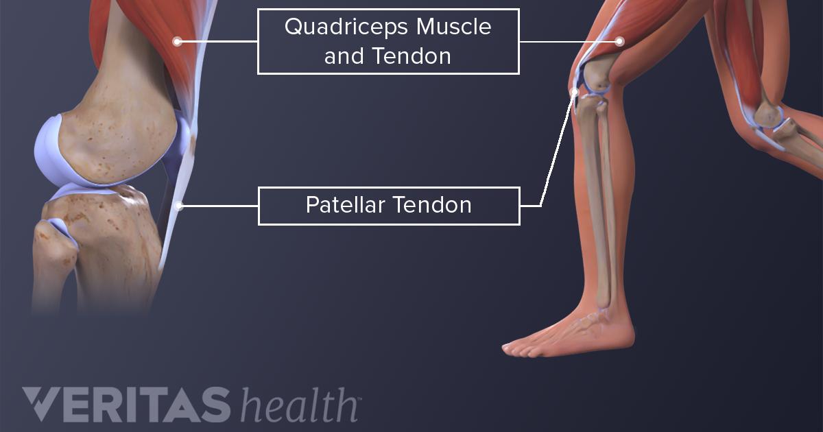 Understanding Jumper S Knee
