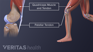 Medical illustration of the anatomy of the hamstrings and patellar tendon