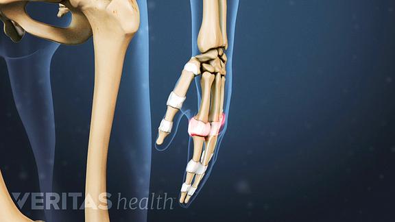 rheumatoid arthritis joint swelling