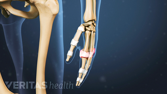 Illustrated skeleton showing painful joints in the hand