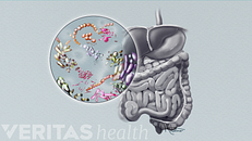 Improving the Gut Microbiome and Arthritis Symptoms with Diet